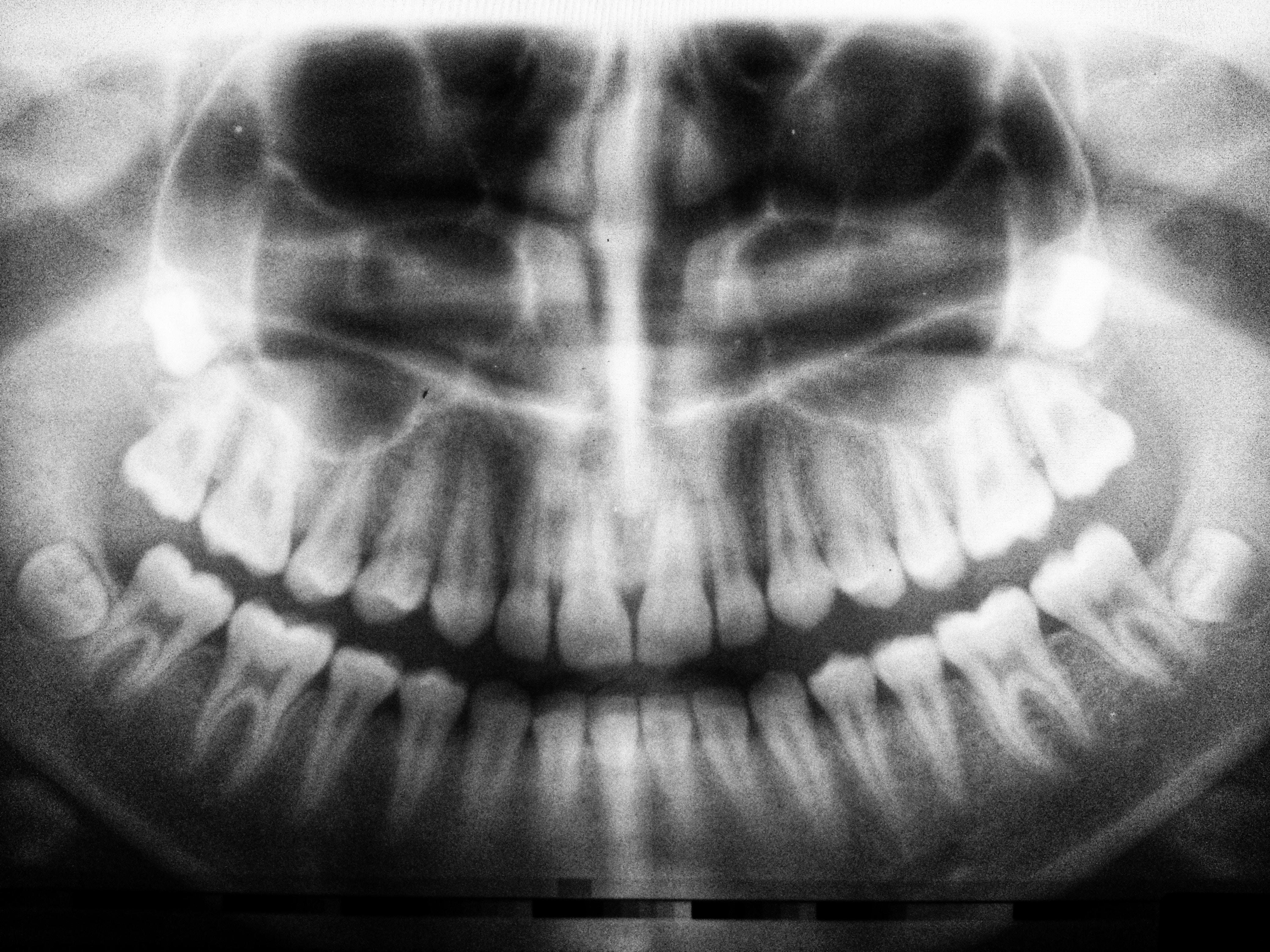 Hvordan gør man tandrensninger mindre smertefulde?